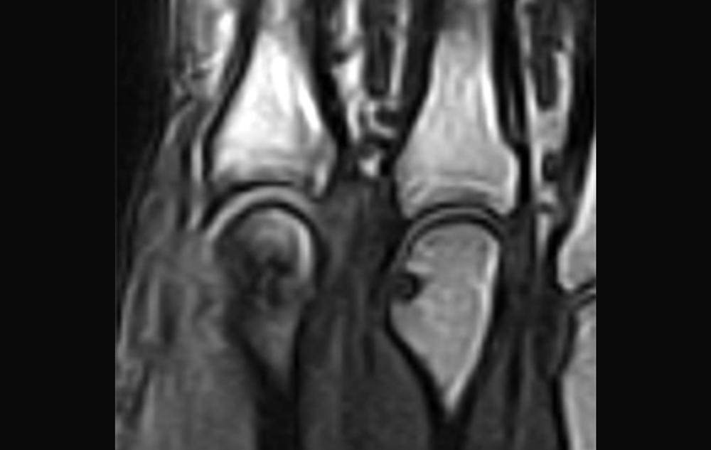 Department of Rheumatology | Rheumatoid arthritis radiology