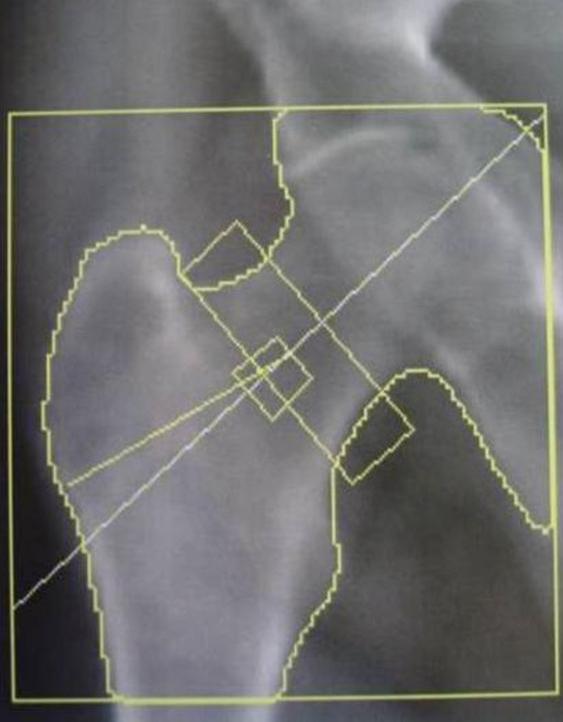 DEXA) assessment of bone mineral density