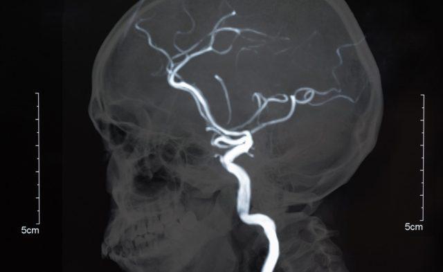 MRI of brain showing blood vessels
