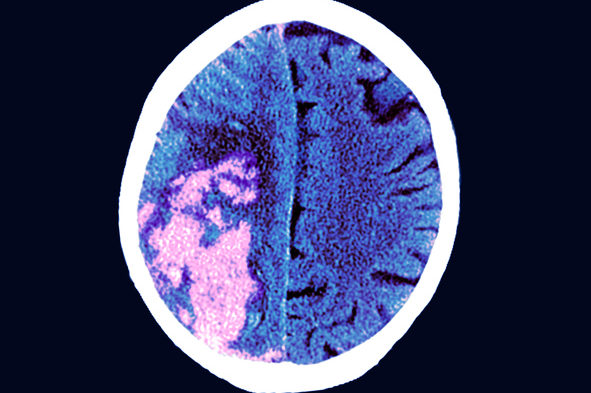MRI scan of a stroke