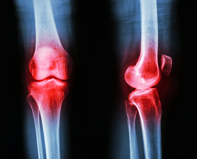 Osteoarthritis knee (Inflammation at knee)