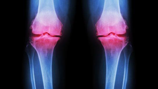 Osteoarthritis Knee RA