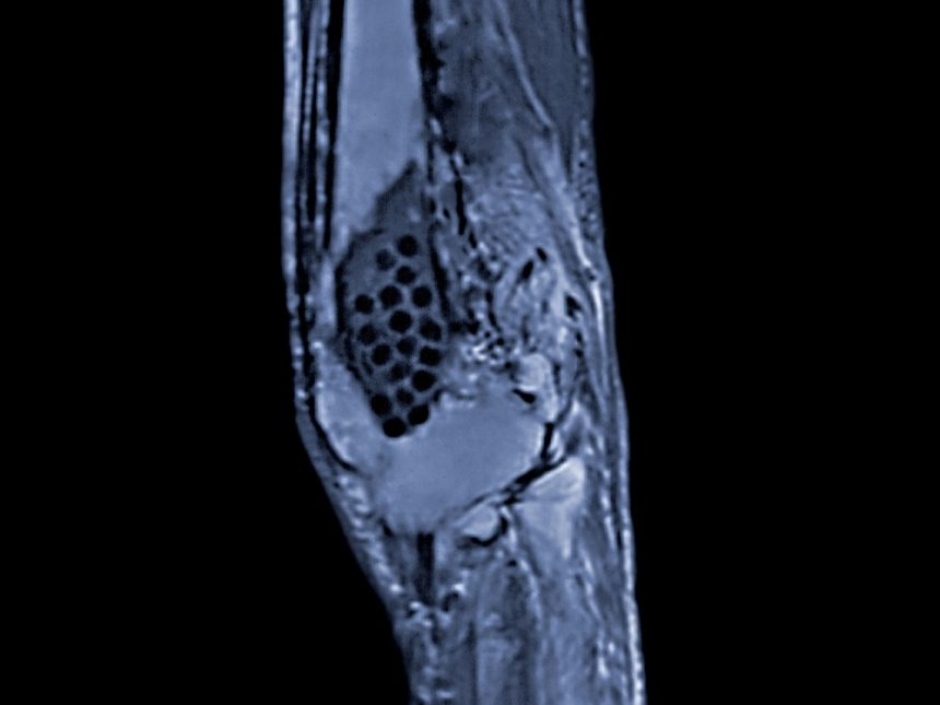 MRI of a knee joint showing the destruction of bone due to advanced osteomyelitis