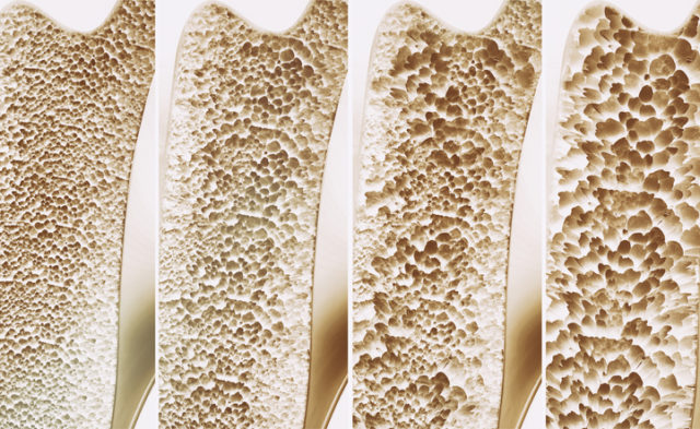 3D rendering of 4 stages of osteoporosis