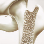 Osteoporosis in the femur