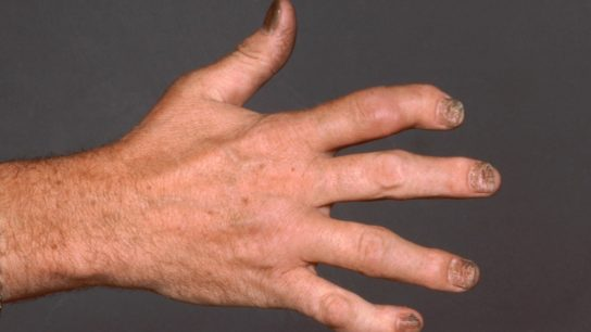 Hand with PsA