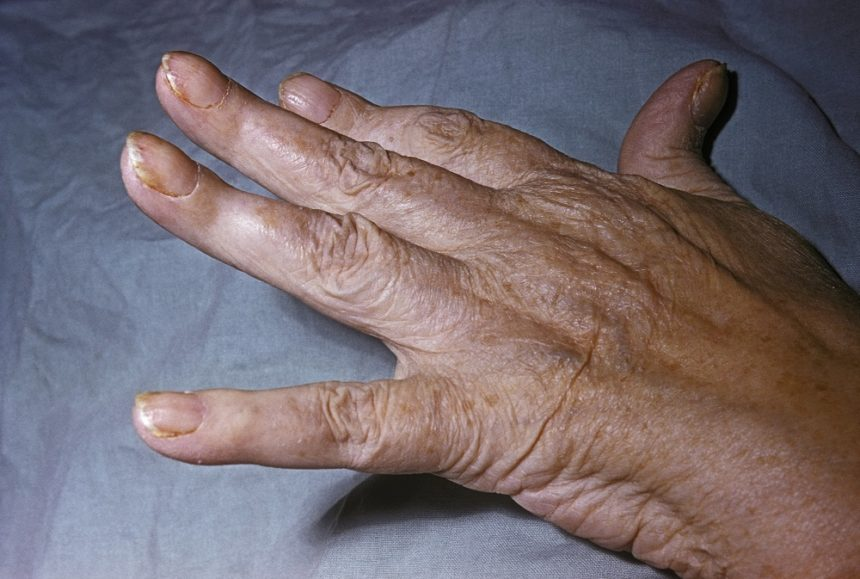 psoriatic arthritisin the hand