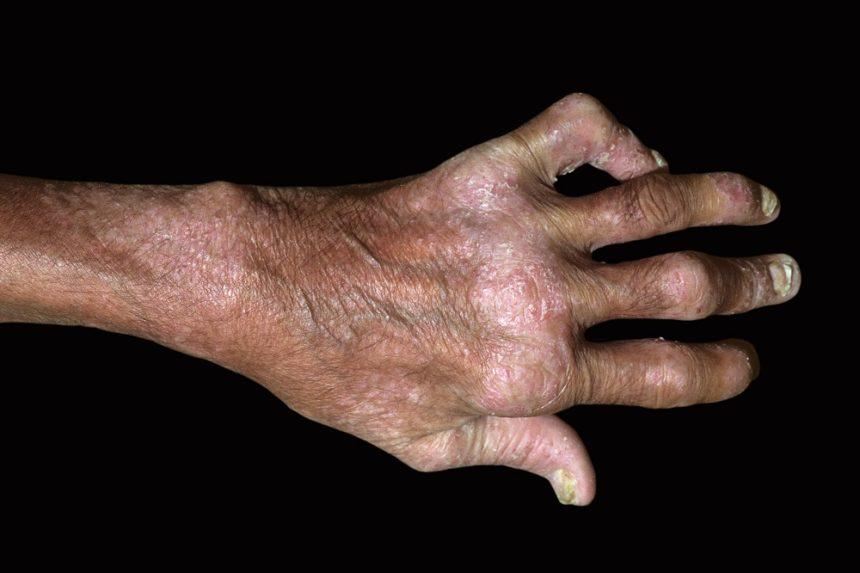 Psoriatic arthritis in the hand