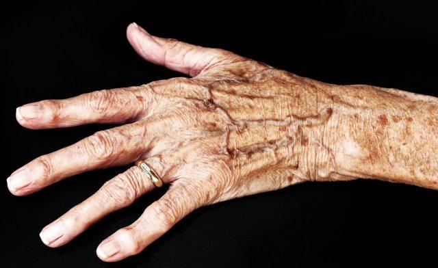 Psoriatic arthritis of the hands
