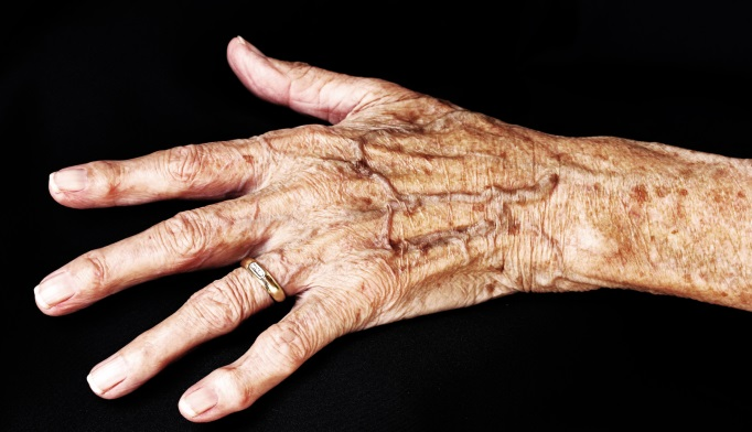 Psoriatic arthritis of the hands