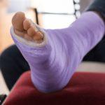 Purple ankle cast