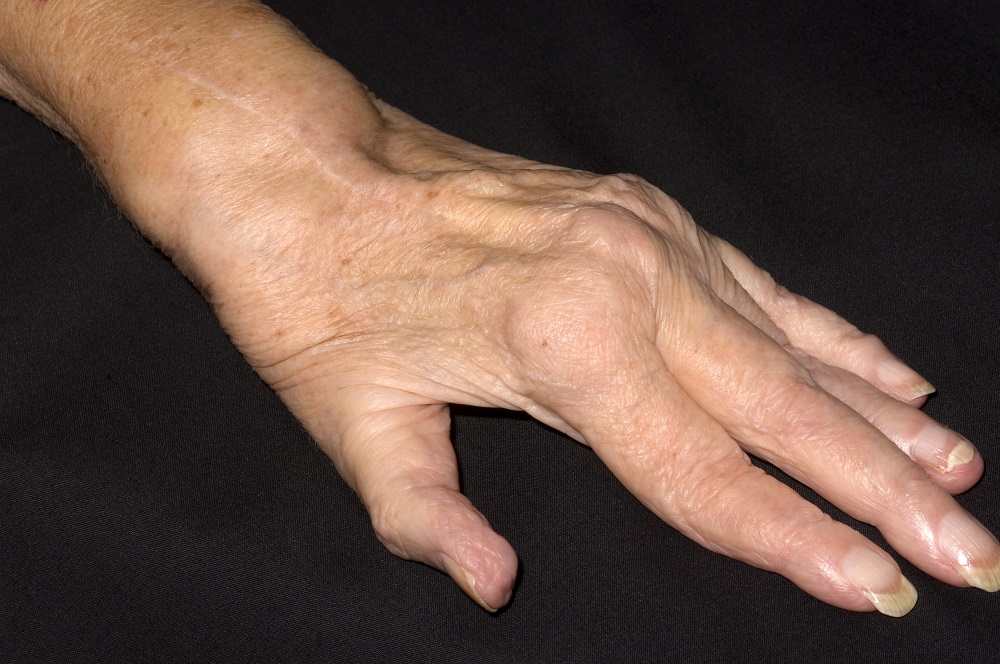 картинки деформация руки три года одежда