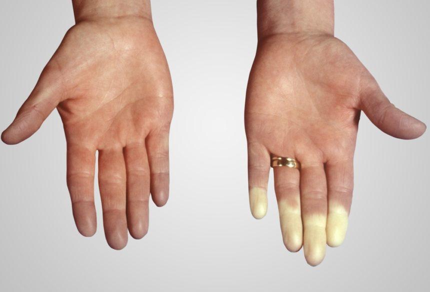 Raynaud phenomenon RP scleroderma