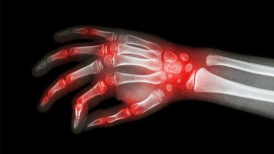 rheumatoid arthritis dmard vs biologic