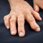 RA hands