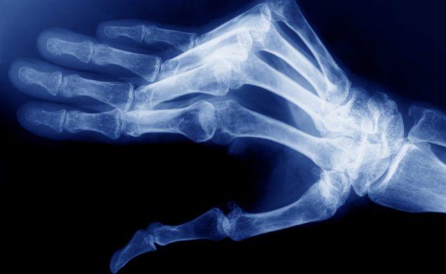 Radiograph of rheumatoid arthritis in the right hand
