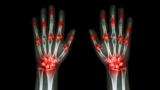 rheumatoid-arthritis-ra-pain-CA0516