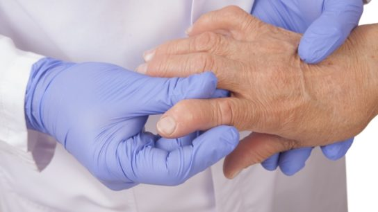 Clinician examining the hand of a patient with rheumatoid arthritis