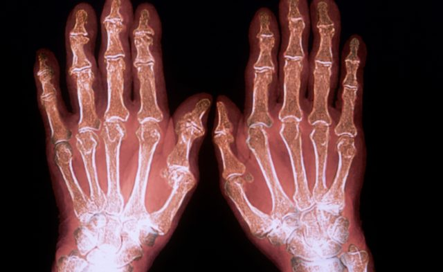 x-ray of rheumatoid polyarthritis in hand