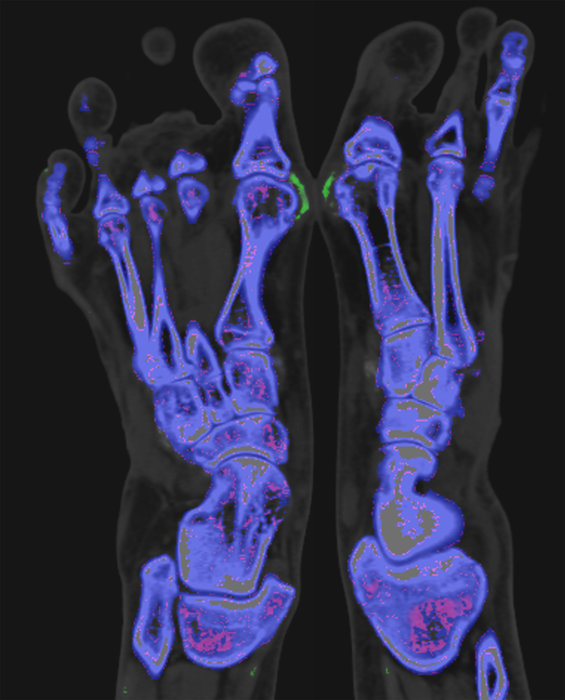 dual energy CT scan of feet with gout