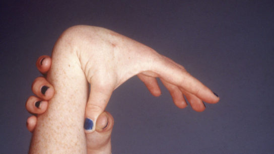 hypermobility in the wrist and thumb