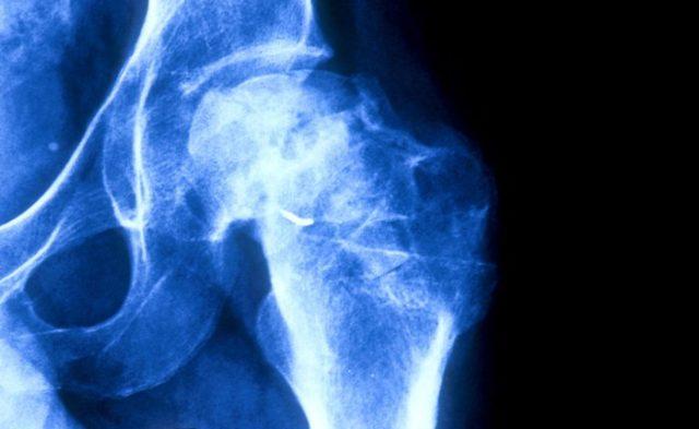 osteonecrosis x-ray