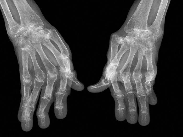 rheumatoid arthritis hands x-ray ulnar deviation