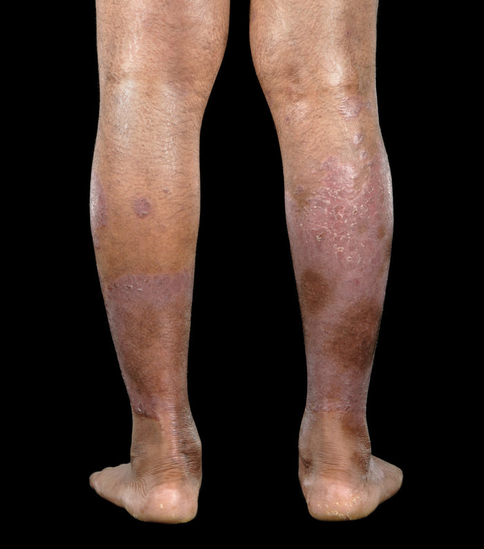 legs with psoriasis