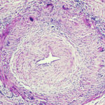 temporal arteritis at the histiocytic/giant cell stage