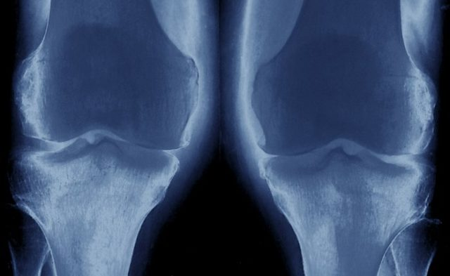Frontal view X-Ray of the knees showing early stage osteoarthritis
