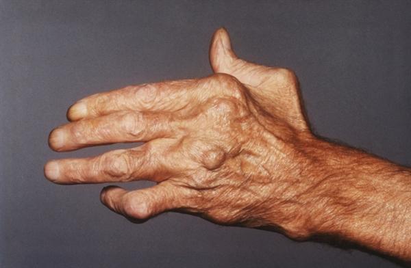 Rheumatoid Nodulosis