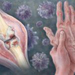 Tapering DMARD Therapy in Rheumatoid Arthritis