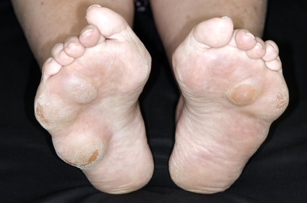 """Rheumatoid nodulosis is characterized by multiple nodules on the hands and multiple subchondral bone cysts known as """"geodes."""" These nodules tend to occur on extensor surfaces adjacent to joints, elbows, and fingers, as well as on the forearm, metacarpophalangeal and proximal interphalangeal joints, occiput, back, heel, and other areas. If the formation of accelerated nodulosis is suspected to be secondary to methotrexate treatment, discontinuation of the drug and consideration of other treatment including other DMARDs and biologic response-modifying agents (eg, anti-tumor necrosis factor [TNF] alpha agents). Pictured here are rheumatoid nodules."""