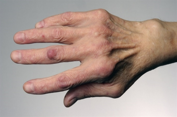 Rheumatoid arthritis (RA) should be suspected in the adult patient who presents with inflammatory polyarthritis. The initial evaluation of such patients requires a careful history and physical examination, along with selected laboratory testing to identify features that are characteristic of RA or that suggest an alternative diagnosis. A thorough medical history with close attention to joint involvement and a complete physical examination to assess for possible joint range-of-motion limitation as well as possible presence of synovitis and extraarticular disease manifestations is crucial to including RA in the differential diagnosis and to prompt further laboratory testing.