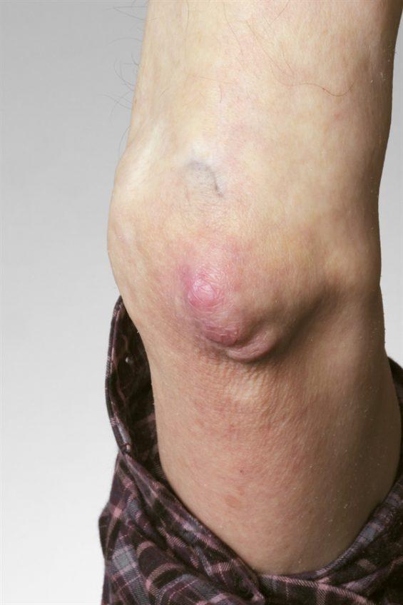 Dermatologic Manifestations Of Rheumatoid Arthritis Rheumatology Advisor
