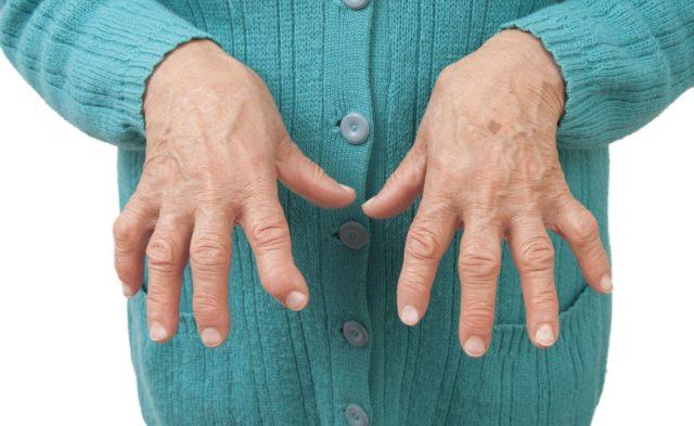 Rheumatoid Arthritis in hands.