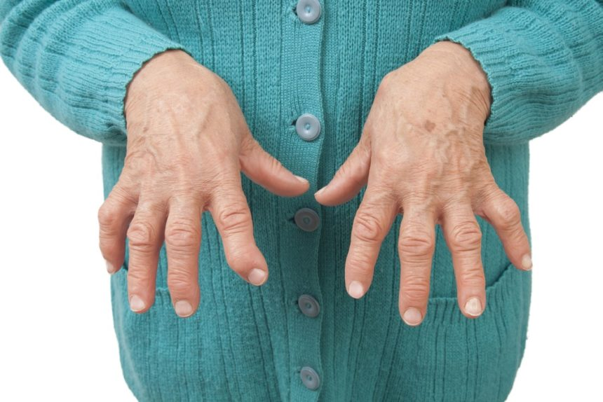 Rheumatoid Arthritis in hands.
