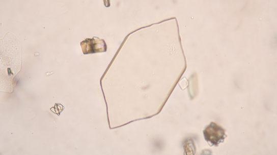 gout uric acid crystals