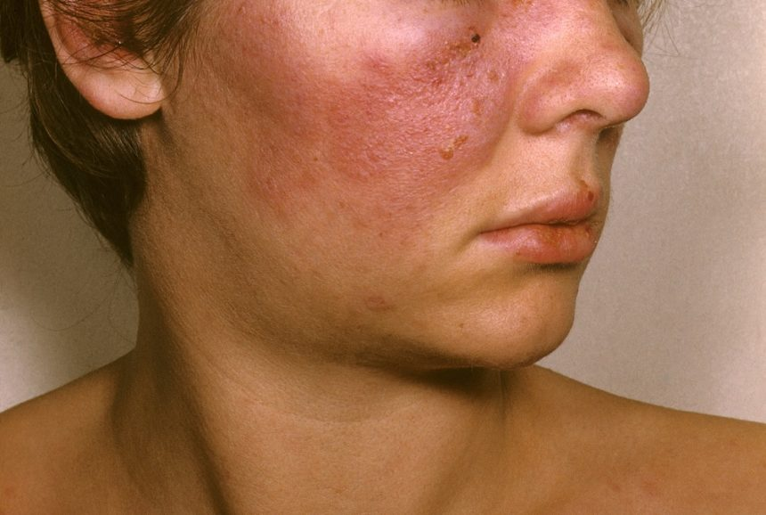 SLE on female patient's face