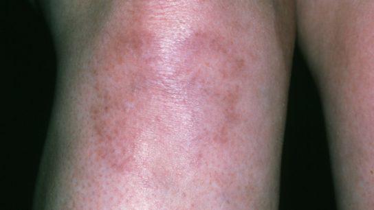 SLE on woman's leg