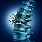 spine fracture