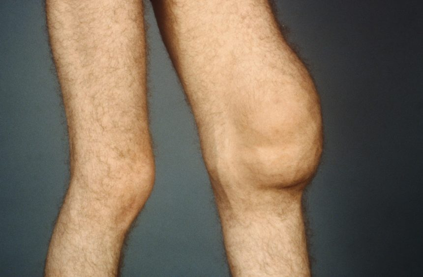 Swollen knee from synovitis