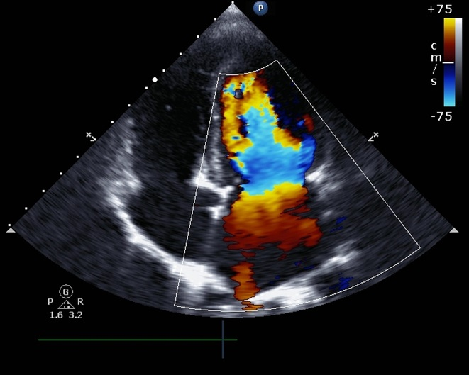 Management of CV Risk in Patients With RA