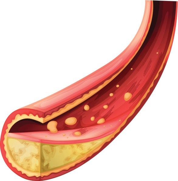 Inflammation plays an important role in MI among patients with RA, as supported by a study that documented elevated levels of tumor necrosis factor (TNF)-alpha and interleukin (IL)-6 in patients with RA. High levels of TNF-alpha and IL-6 were associated with the severity of subclinical atherosclerosis as measured by coronary artery calcification and were independent of Framingham risk score and diabetes mellitus. Ongoing and persistent disease activity may be necessary to maintain progression of atherosclerotic burden. A study found no detectable signs of atherosclerosis in patients with newly diagnosed RA as compared to controls when measuring endothelial-dependent flow-mediated dilation and intima media thickness despite elevated serum markers for endothelial activation.