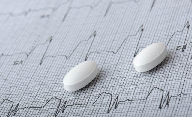 myocardial infarction MI EKG