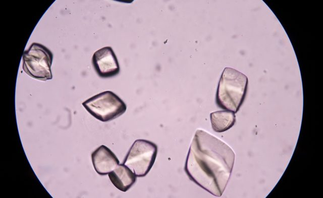 gout urate crystal