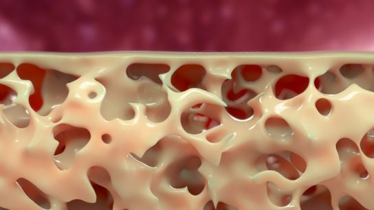 bone osteoporosis fracture