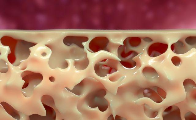 bone osteoporosis fracture