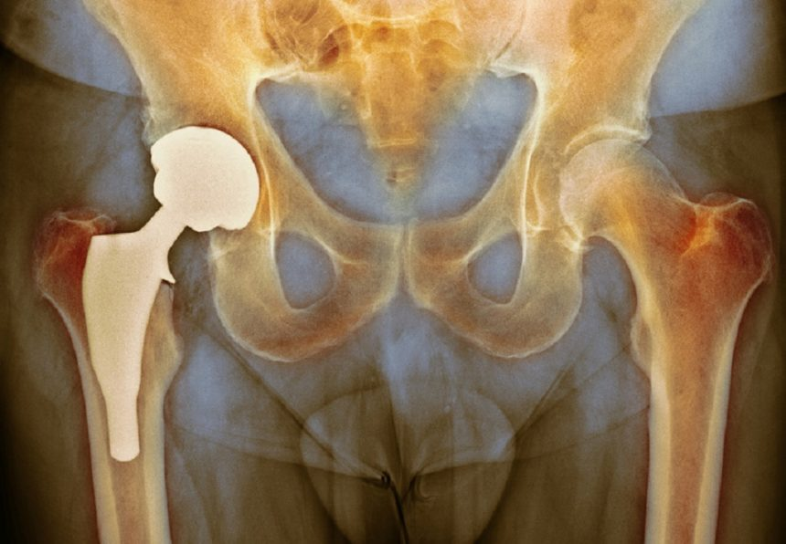 x ray of total hip replacement
