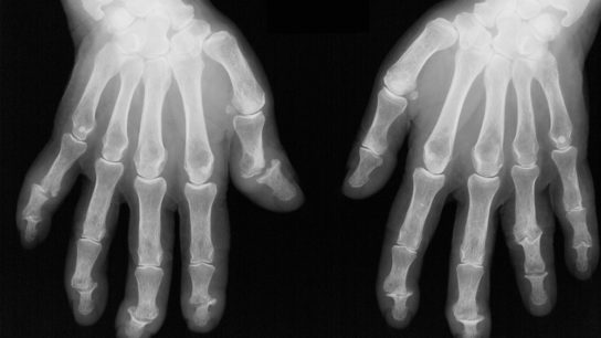 x-ray of two hands with psoriatic arthritis